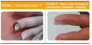 Naclerio Ulcere La Sclerosi Sistemica_rev_1_2015docx